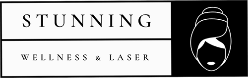 Stunning Wellness and Laser Logo